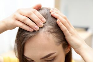 9 Natural Hair Loss Products